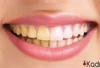 Diş sarılığını gidermek için 13 ipucu