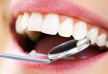 Diş plağı ve tartar nedir, nasıl temizlenir?